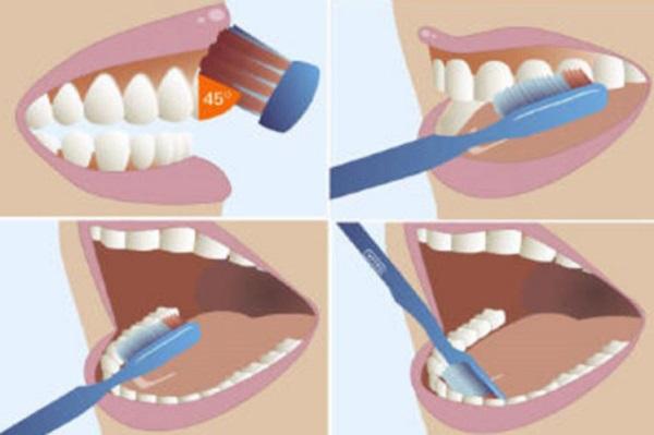 lấy cao răng bằng phương pháp tự nhiên 8