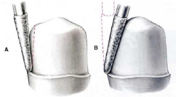 quy trình bọc răng sứ 3