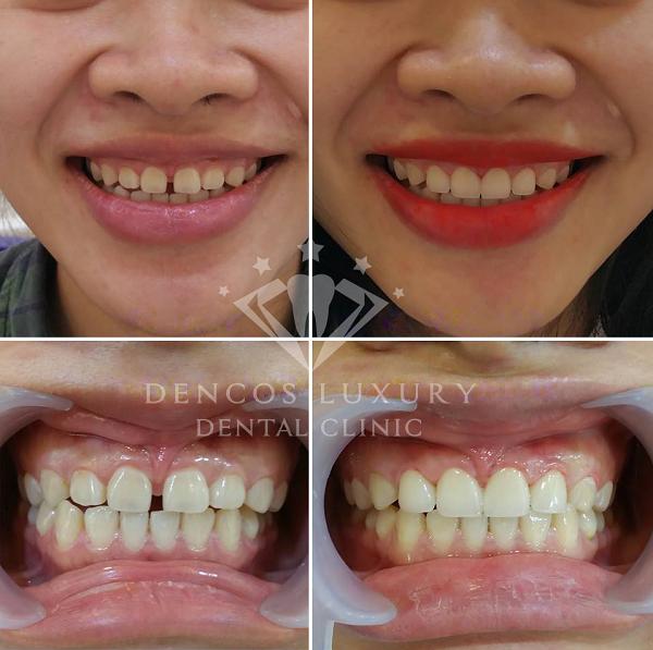 Bọc răng sứ mất bao lâu