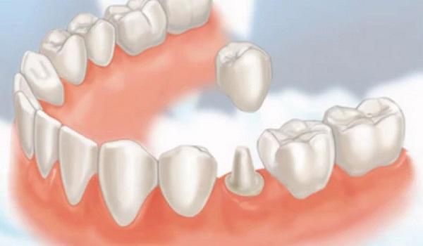 bọc sứ răng hàm