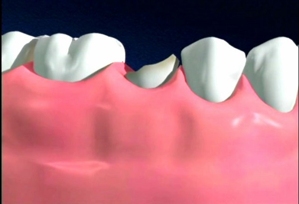 bọc sứ răng hàm 2