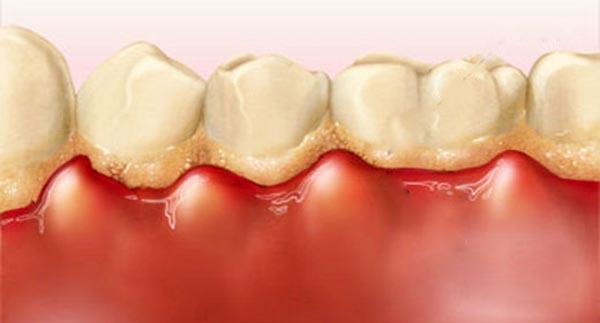 căn bệnh từ cao răng 2