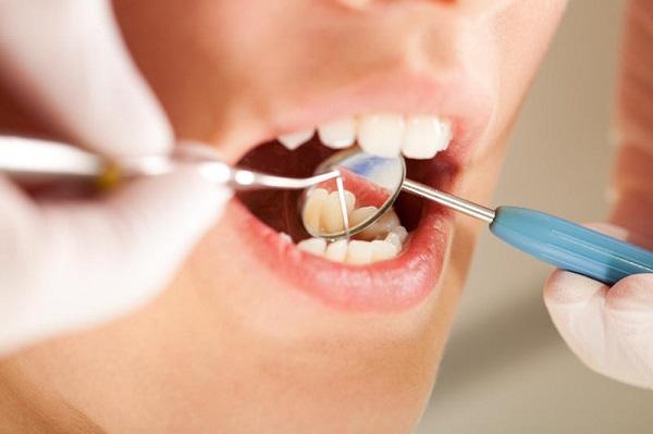 căn bệnh từ cao răng 4