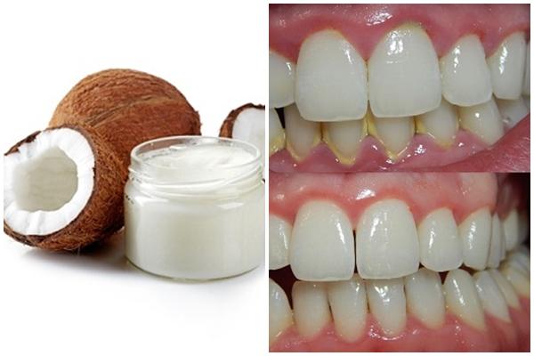 lấy cao răng bằng dầu dừa