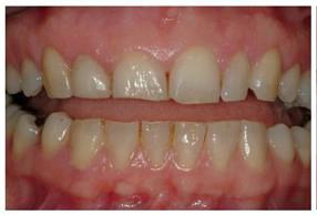 phục hình răng sứ 10