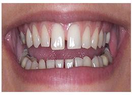 phục hình răng sứ 12