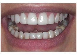 phục hình răng sứ 13