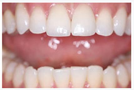 phục hình răng sứ 3