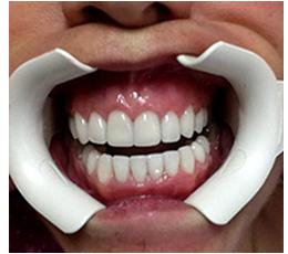 phục hình răng sứ 5