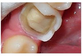 phục hình răng sứ 6