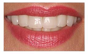 phục hình răng sứ 9