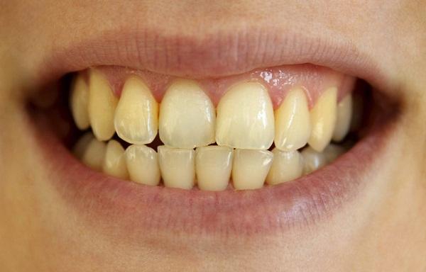 Răng bị vàng