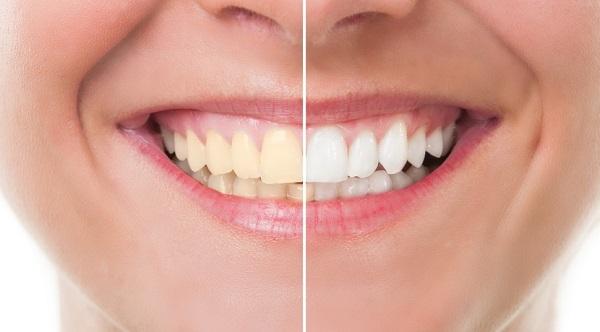 răng bị vàng 3