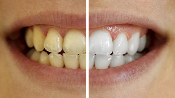 răng bị vàng 4