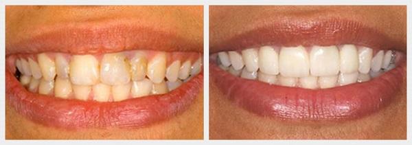 răng bị vàng 5