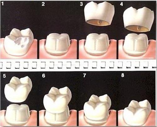Bọc răng sứ như thế nào 2