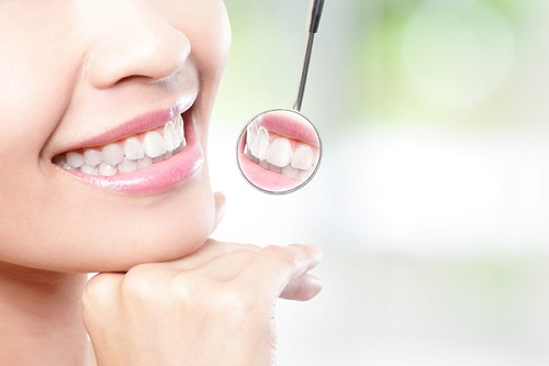 Có nên bọc răng sứ Emax 2