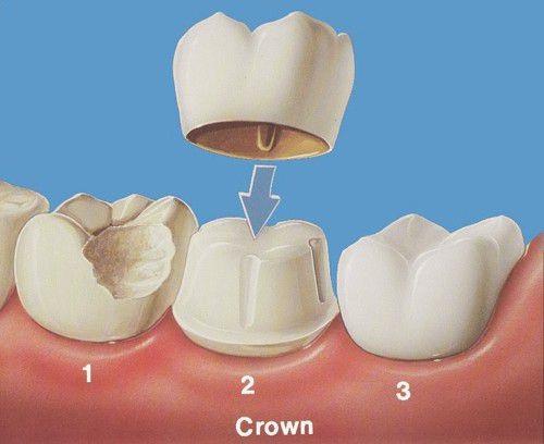 Chụp răng