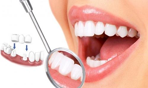 Mão răng sứ 2