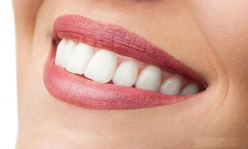 Dán răng sứ 2