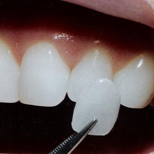 Răng sứ vita 2