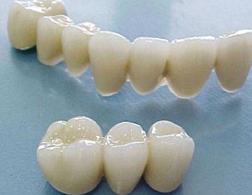 Cầu răng 2