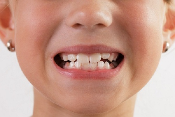 làm sao chữa bệnh nghiến răng khi ngủ 2