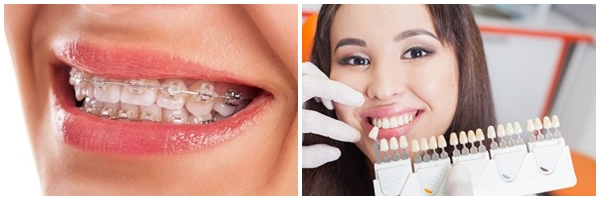 làm sao để chữa bệnh nghiến răng khi ngủ 3