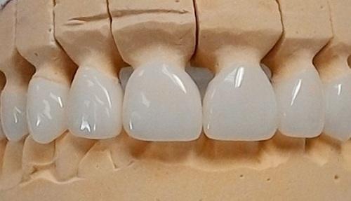 Răng sứ Cercon zirconia