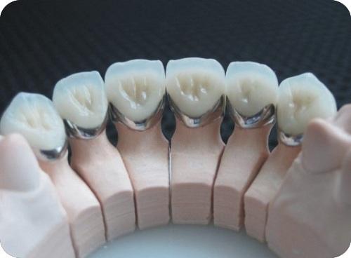 Răng sứ cercon zirconia 2
