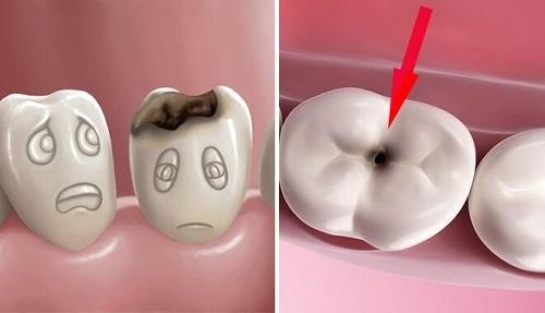 Răng sứ có bị sâu không