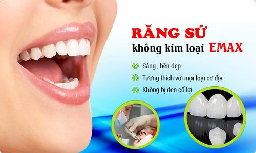 Răng toàn sứ Emax 2
