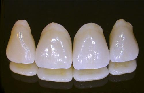 Răng sứ Alumina
