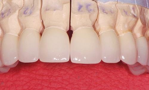 Răng sứ alumina 2