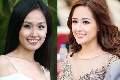 <center>Hoa hậu mai phương thúy rạng rỡ sau khi niềng răng<center>