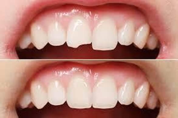 Bọc răng sứ phục hình răng khi bị chết tủy