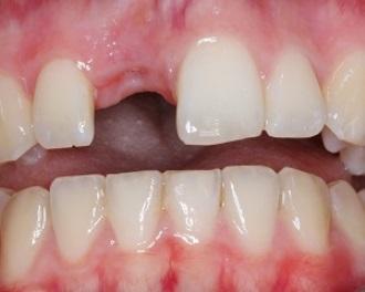 Mất răng làm tăng khả năng gây ung thư