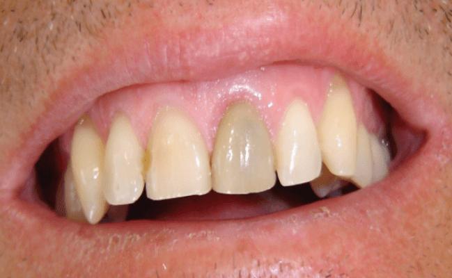 Phương pháp phục hình răng khi bị chết tủy