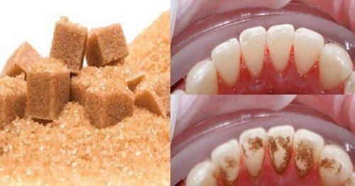đường nâu giúp lấy cao răng bằng phương pháp tự nhiên