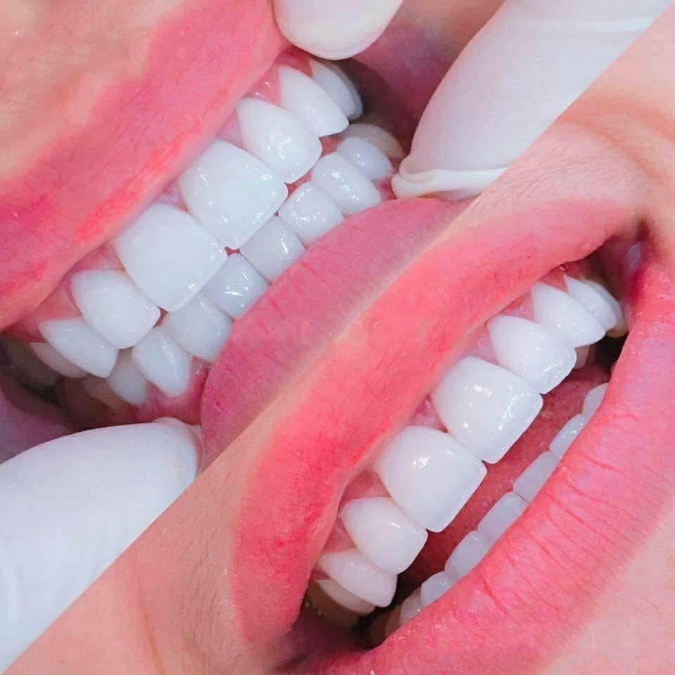 Bọc răng sứ để làm trắng răng
