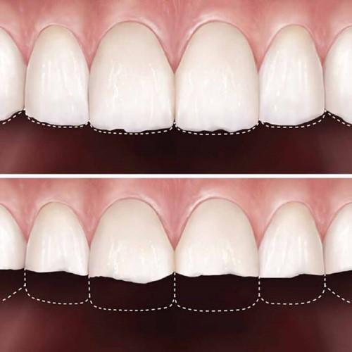 Làm mòn răng