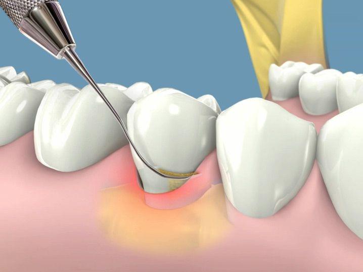 Nha sĩ lấy cao răng như thế nào tác dụng của lấy cao răng