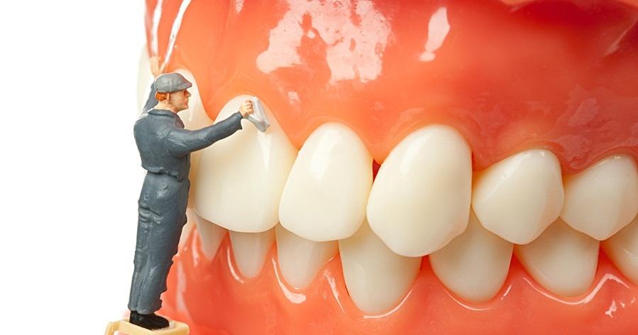 bao nhiêu lâu lấy cao răng 1 lần