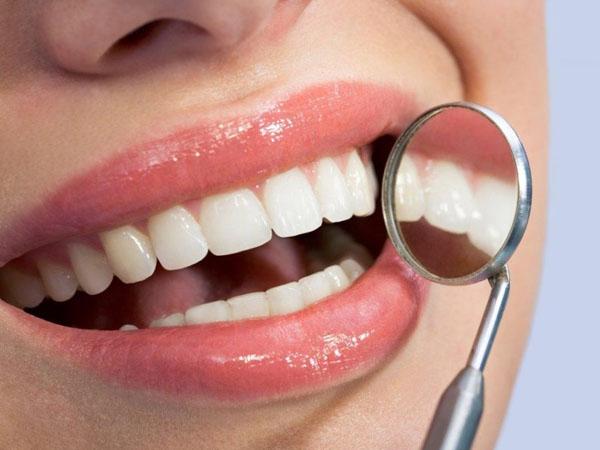 Lấy cao răng đen bao nhiêu tiền