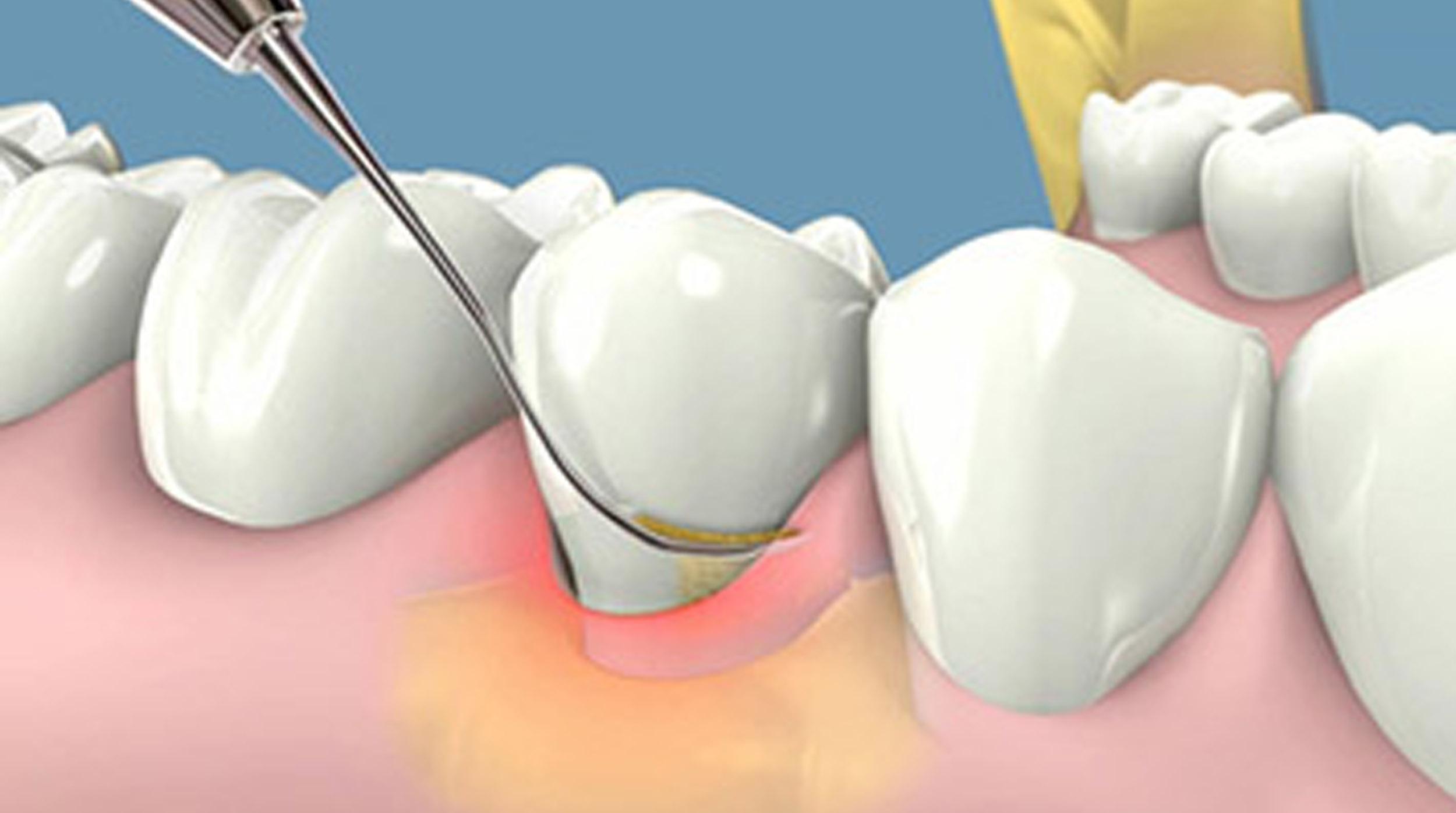 Lấy cao răng lâu năm