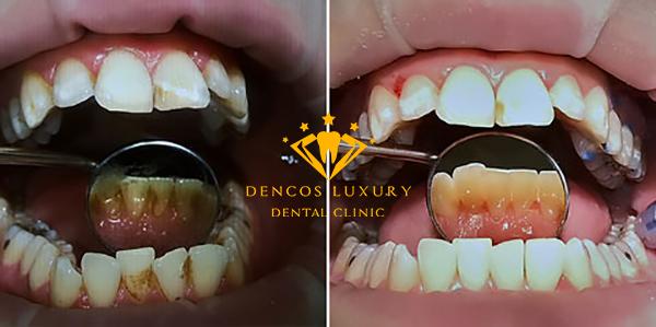 Nha sĩ lấy cao răng như thế nào