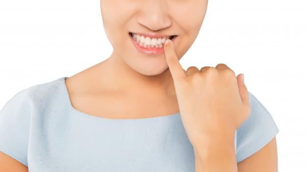 Lấy cao răng hết bao lâu