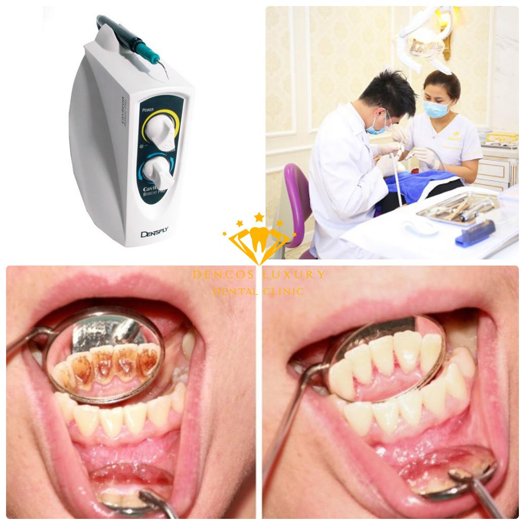 Lấy cao răng hiện đại