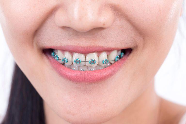 Lấy cao răng khi niềng răng