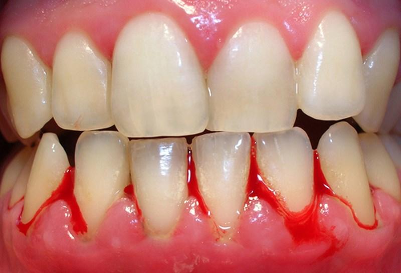 Lấy cao răng về bị chảy máu